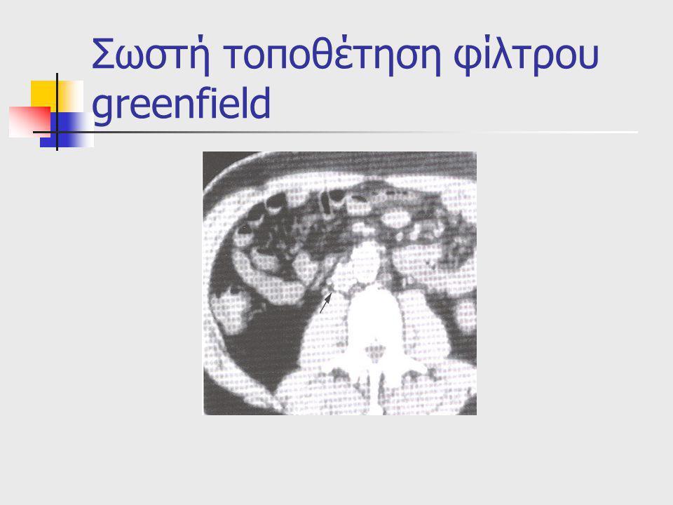 Σωστή τοποθέτηση φίλτρου greenfield