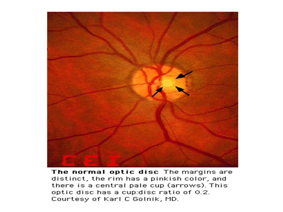Ερωτήματα που πρέπει να απαντήσει ο ιατρός για πιθανό υπερτασικό ασθενή 1Έχει Υπέρταση ή όχι; 2Εάν ναι, Ιδιοπαθής ή Δευτεροπαθής; 3Υπάρχουν βλάβες σε τελικά όργανα- στόχους (καρδιά, νεφροί, εγκέφαλος, μάτια, αγγεία); 4Ποιός ο συνολικός καρδιαγγειακός κίνδυνος (με βάση άλλους συμπαρομαρτούντες παράγοντες κινδύνου);