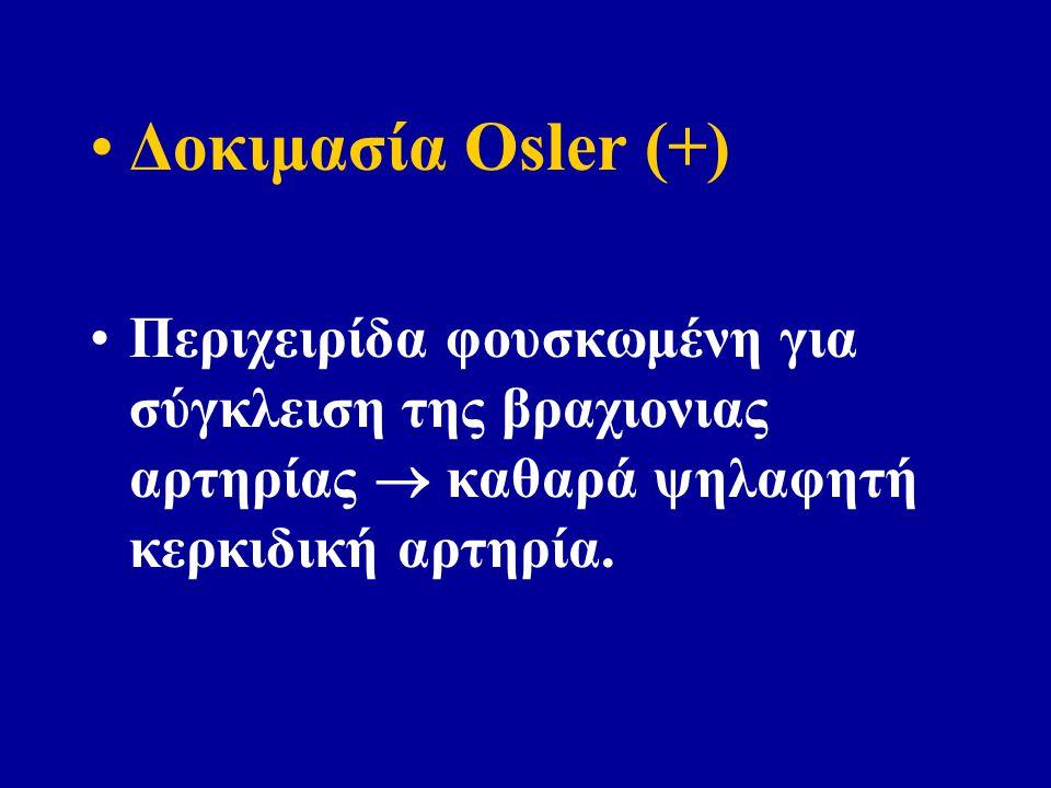 Δοκιμασία Osler (+) Περιχειρίδα φουσκωμένη για σύγκλειση της βραχιονιας αρτηρίας  καθαρά ψηλαφητή κερκιδική αρτηρία.