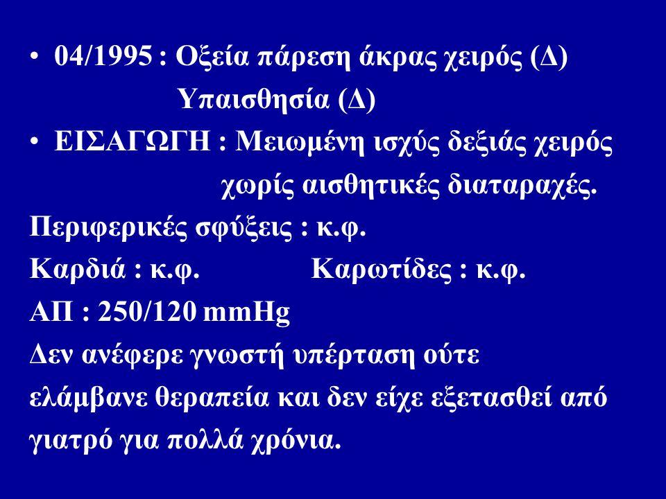 04/1995 : Οξεία πάρεση άκρας χειρός (Δ) Υπαισθησία (Δ) ΕΙΣΑΓΩΓΗ : Μειωμένη ισχύς δεξιάς χειρός χωρίς αισθητικές διαταραχές.