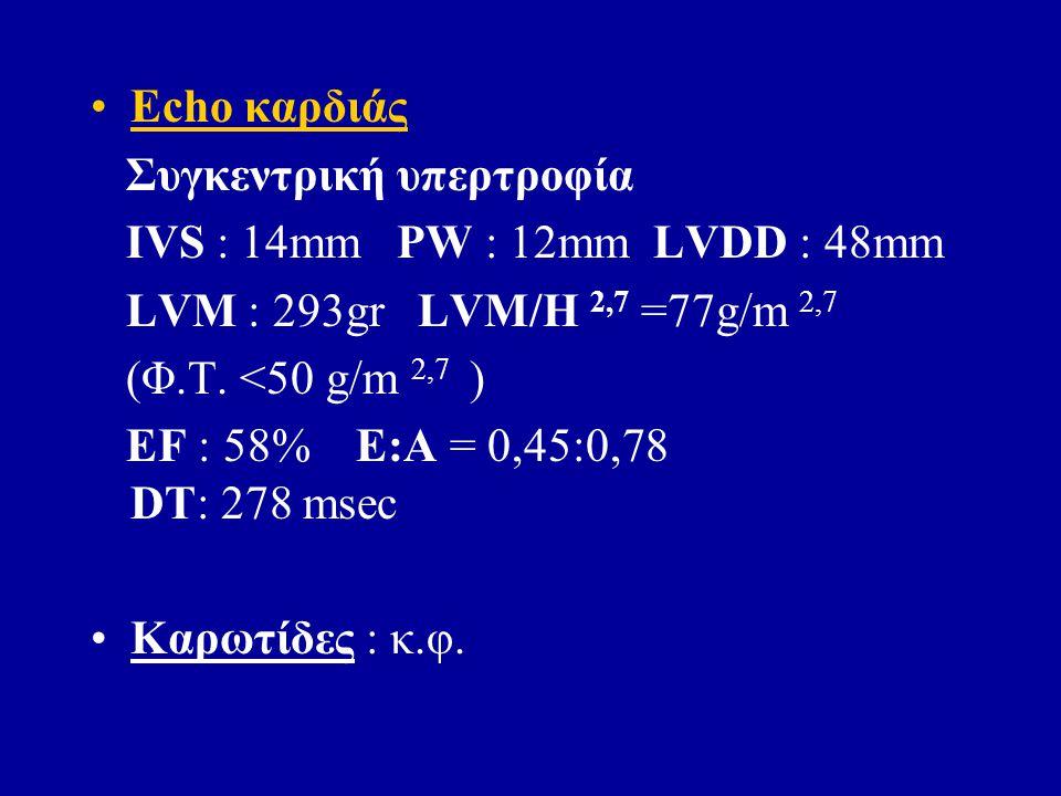 Echo καρδιάς Συγκεντρική υπερτροφία IVS : 14mm PW : 12mm LVDD : 48mm LVM : 293gr LVM/H 2,7 =77g/m 2,7 (Φ.Τ.