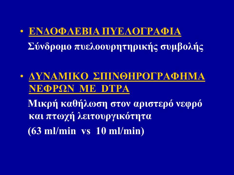 ΕΝΔΟΦΛΕΒΙΑ ΠΥΕΛΟΓΡΑΦΙΑ Σύνδρομο πυελοουρητηρικής συμβολής ΔΥΝΑΜΙΚΟ ΣΠΙΝΘΗΡΟΓΡΑΦΗΜΑ ΝΕΦΡΩΝ ΜΕ DTPA Μικρή καθήλωση στον αριστερό νεφρό και πτωχή λειτουργικότητα (63 ml/min vs 10 ml/min)