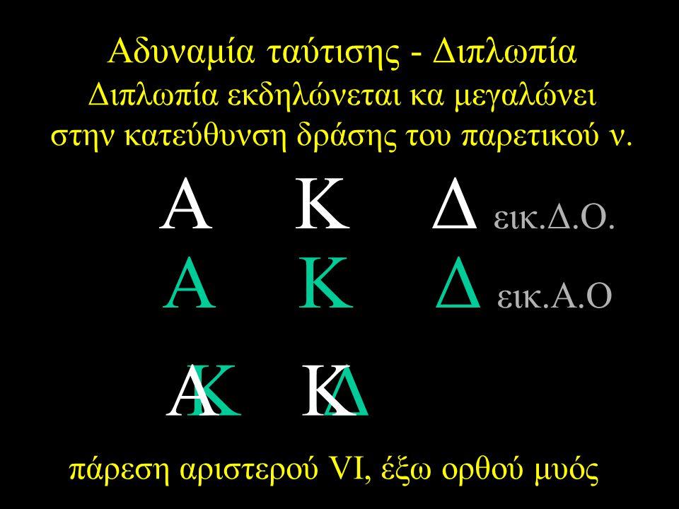 Αδυναμία ταύτισης - Διπλωπία Διπλωπία εκδηλώνεται κα μεγαλώνει στην κατεύθυνση δράσης του παρετικού ν. ΑΚΔ εικ.Δ.Ο. ΑΚΔΑΚΔ ΑΚΔ εικ.Α.Ο ΑΚΔΑΚΔ πάρεση α