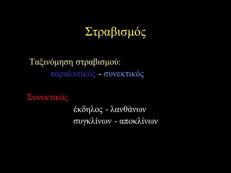Στραβισμός Ταξινόμηση στραβισμού: παραλυτικός - συνεκτικός Συνεκτικός έκδηλος - λανθάνων συγκλίνων - αποκλίνων