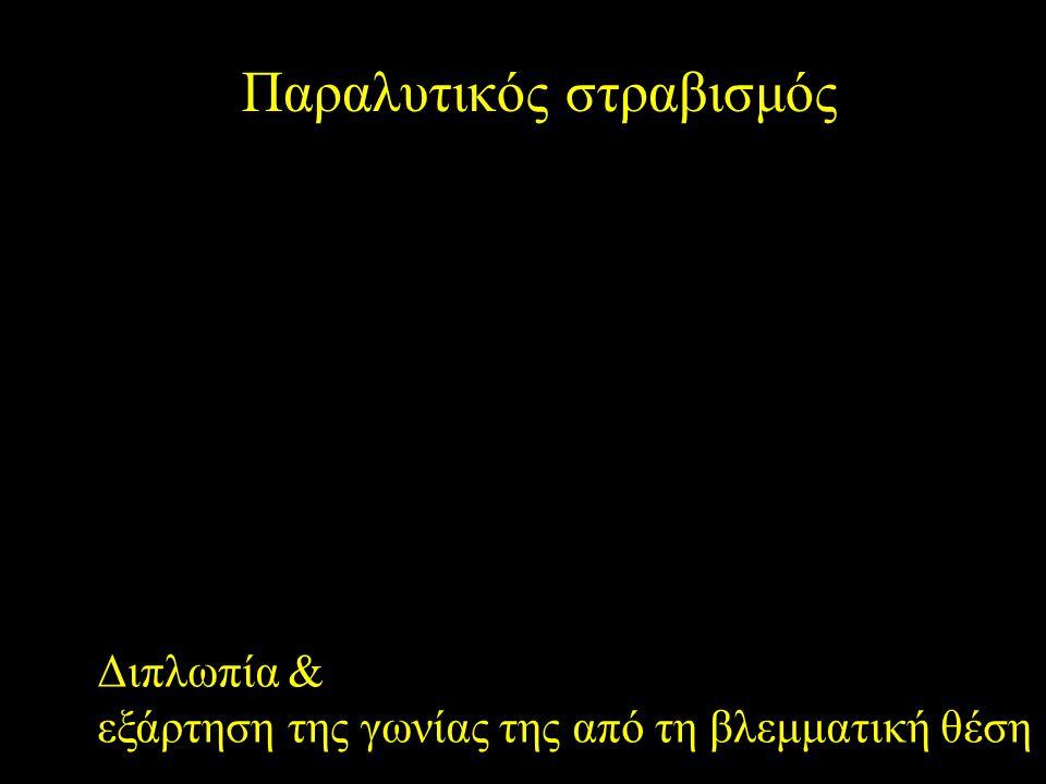 Παραλυτικός στραβισμός Διπλωπία & εξάρτηση της γωνίας της από τη βλεμματική θέση