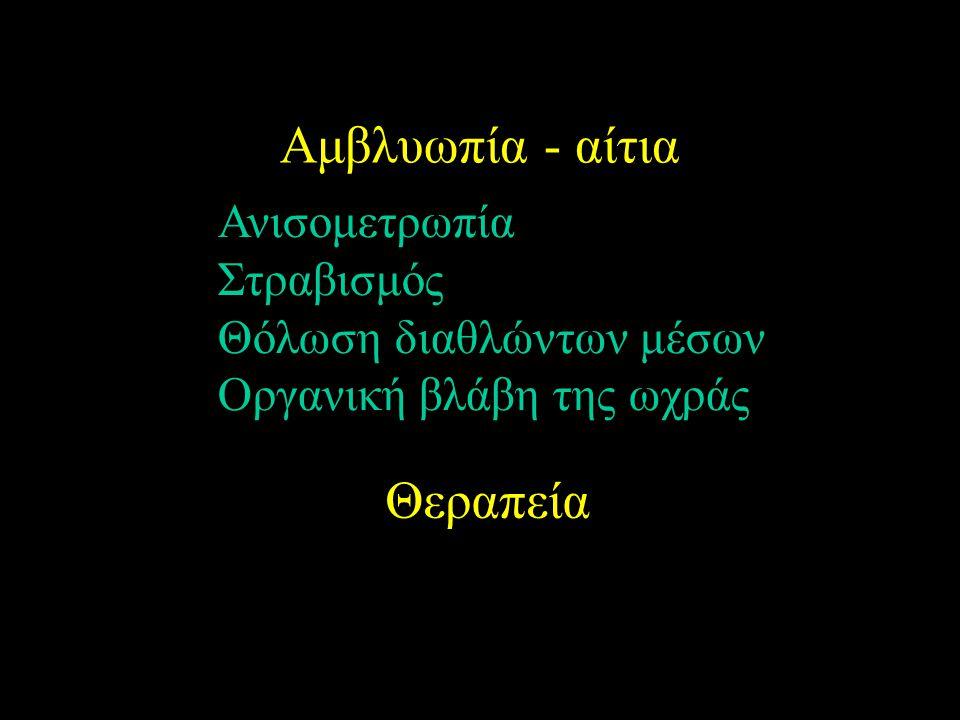 Αμβλυωπία - αίτια Ανισομετρωπία Στραβισμός Θόλωση διαθλώντων μέσων Οργανική βλάβη της ωχράς Θεραπεία