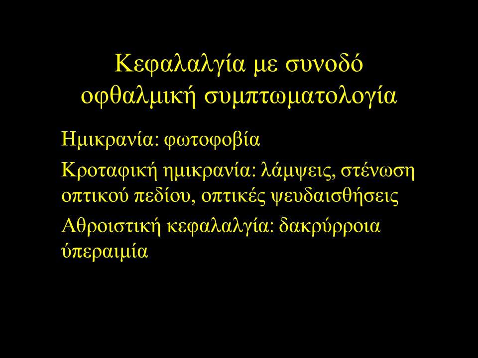 Κεφαλαλγία με συνοδό οφθαλμική συμπτωματολογία Ημικρανία: φωτοφοβία Κροταφική ημικρανία: λάμψεις, στένωση οπτικού πεδίου, οπτικές ψευδαισθήσεις Αθροισ