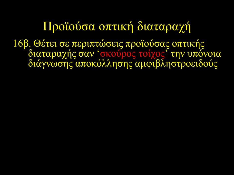 16β. Θέτει σε περιπτώσεις προϊούσας οπτικής διαταραχής σαν 'σκούρος τοίχος' την υπόνοια διάγνωσης αποκόλλησης αμφιβληστροειδούς Προϊούσα οπτική διαταρ