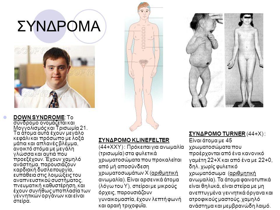 ΣΥΝΔΡΟΜΑ DOWN SYNDROME: Το σύνδρομο ονομάζεται και Μογγολισμός και Τρισωμία 21. Τα άτομα αυτά έχουν μεγάλο κεφάλι και πρόσωπο με λοξά μάτια και απλανέ