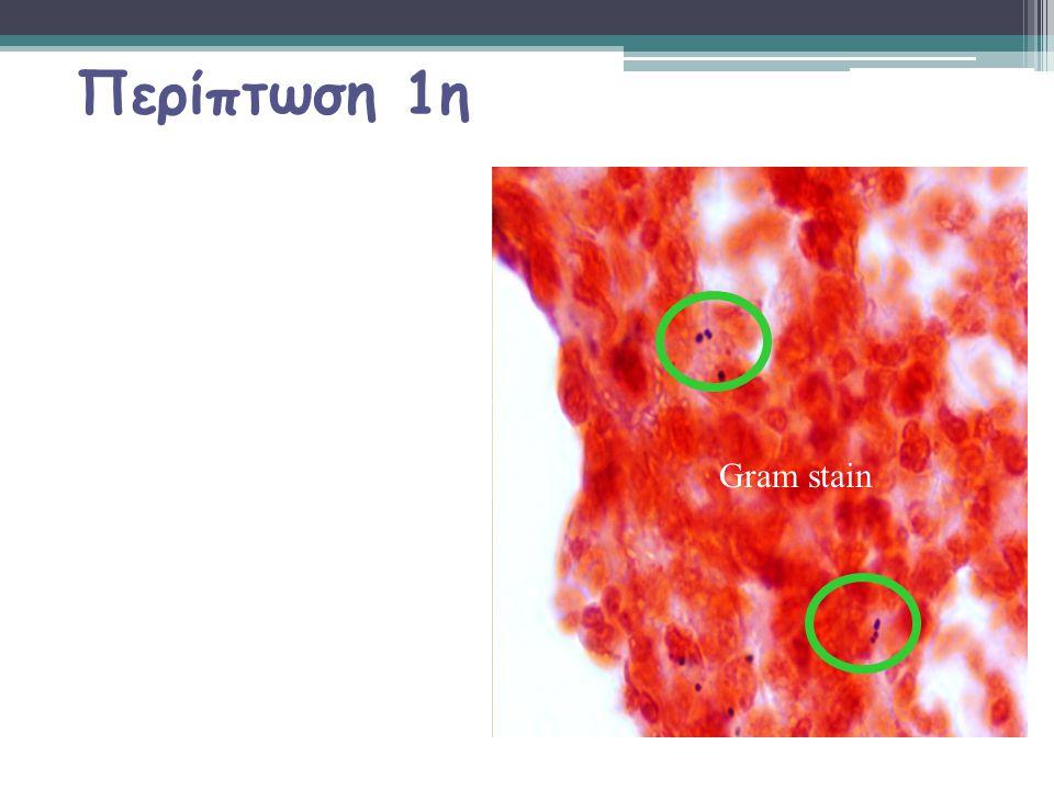 Κλινική παρουσίαση Flu-like illness ΠΠυρετός ΚΚεφαλαλγία ΠΠονόλαιμος ΚΚαταρροή ΝΝαυτία έμετος ΜΜυαλγίες ΜΜηνιγγισμός ΜΜεταβολή του επιπέδου συνείδησης Η Κλασσική τριάδα παρατηρείται μόνο στο 25% των ασθενών με μηνιγγιτιδοκοκκική μηνιγγίτιδα σε σχέση με το 50% στους ασθενείς με πνευμονιοκοκκική μηνιγγίτιδα