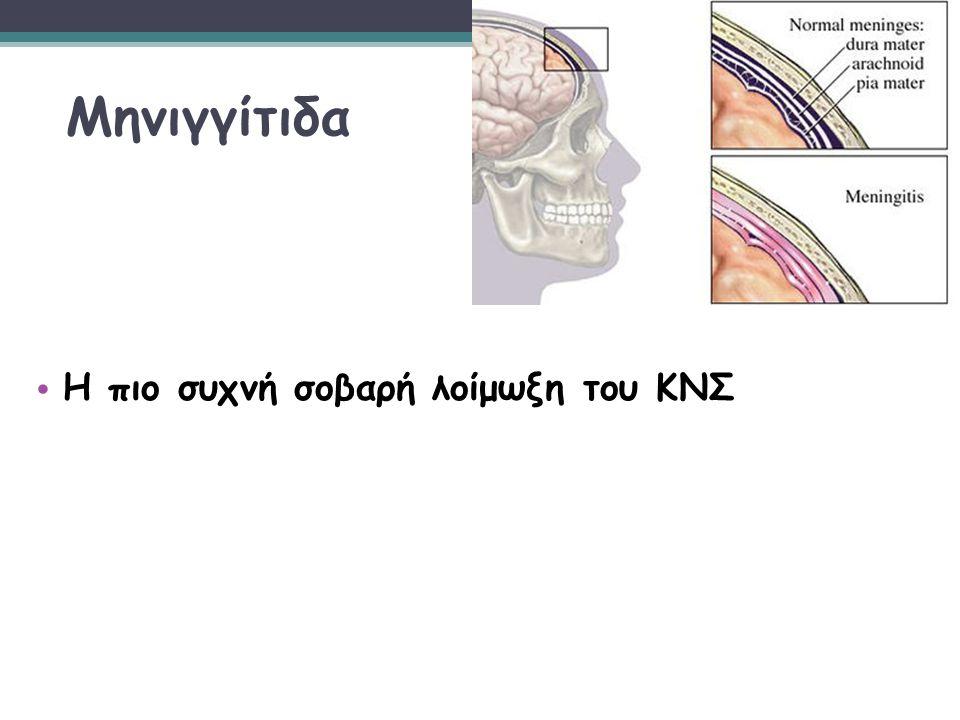 Μηνιγγίτιδα Η πιο συχνή σοβαρή λοίμωξη του ΚΝΣ