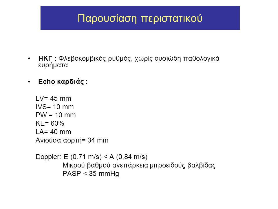 Παρουσίαση περιστατικού ΗΚΓ : Φλεβοκομβικός ρυθμός, χωρίς ουσιώδη παθολογικά ευρήματα Echo καρδιάς : LV= 45 mm IVS= 10 mm PW = 10 mm KE= 60% LA= 40 mm