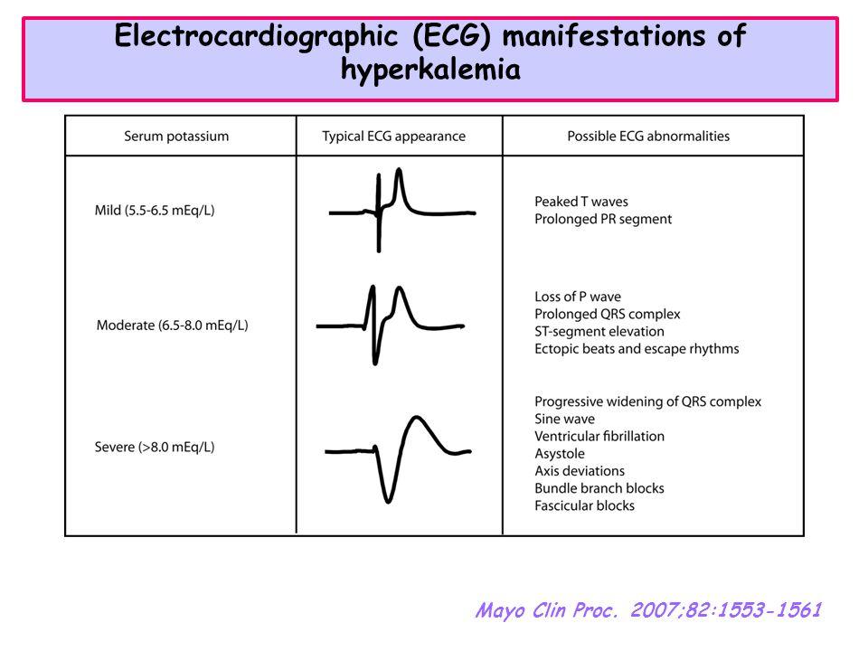 Electrocardiographic (ECG) manifestations of hyperkalemia Mayo Clin Proc. 2007;82:1553-1561