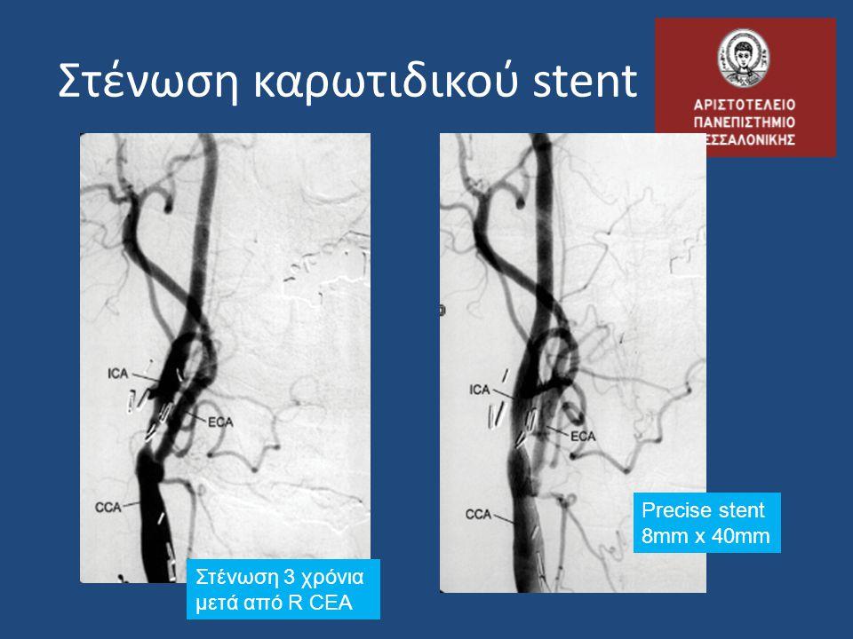 Στένωση καρωτιδικού stent Στένωση 3 χρόνια μετά από R CEA Precise stent 8mm x 40mm