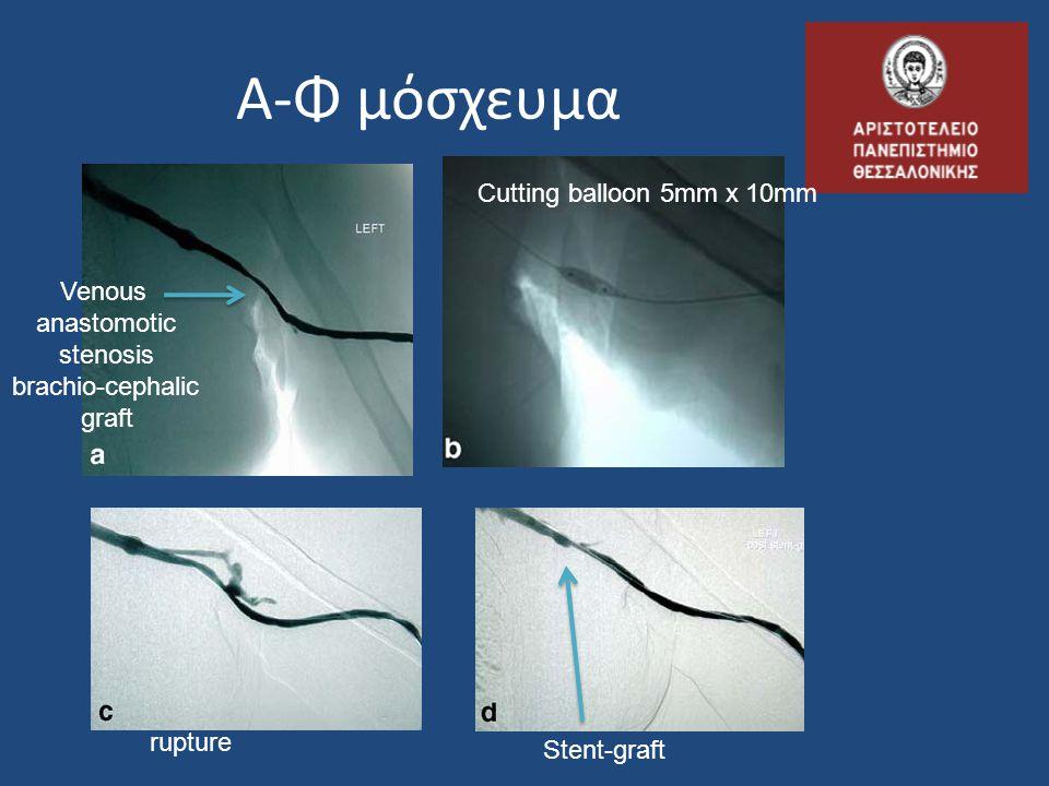 Α-Φ μόσχευμα Venous anastomotic stenosis brachio-cephalic graft Cutting balloon 5mm x 10mm Stent-graft rupture