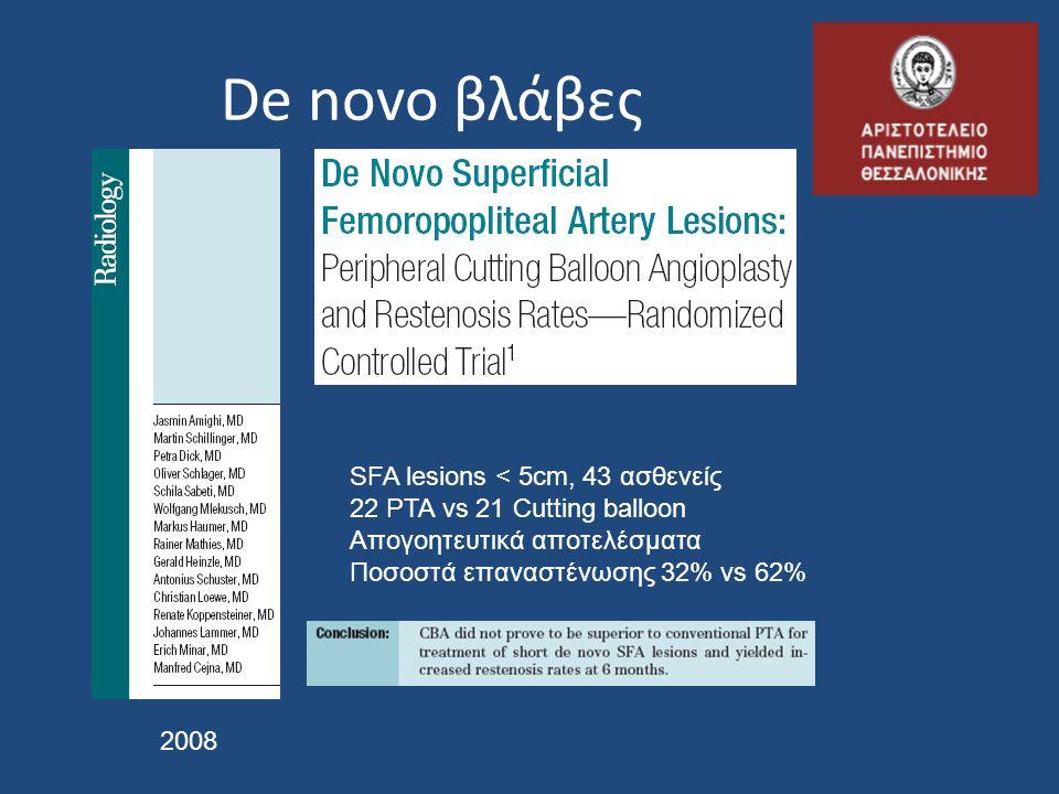 De novo βλάβες 2008 SFA lesions < 5cm, 43 ασθενείς 22 PTA vs 21 Cutting balloon Απογοητευτικά αποτελέσματα Ποσοστά επαναστένωσης 32% vs 62%