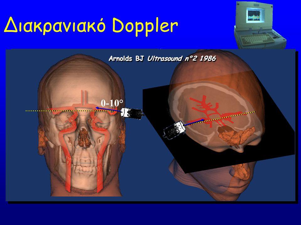 Διακρανιακό Doppler 0-10° Arnolds BJ Ultrasound n°2 1986