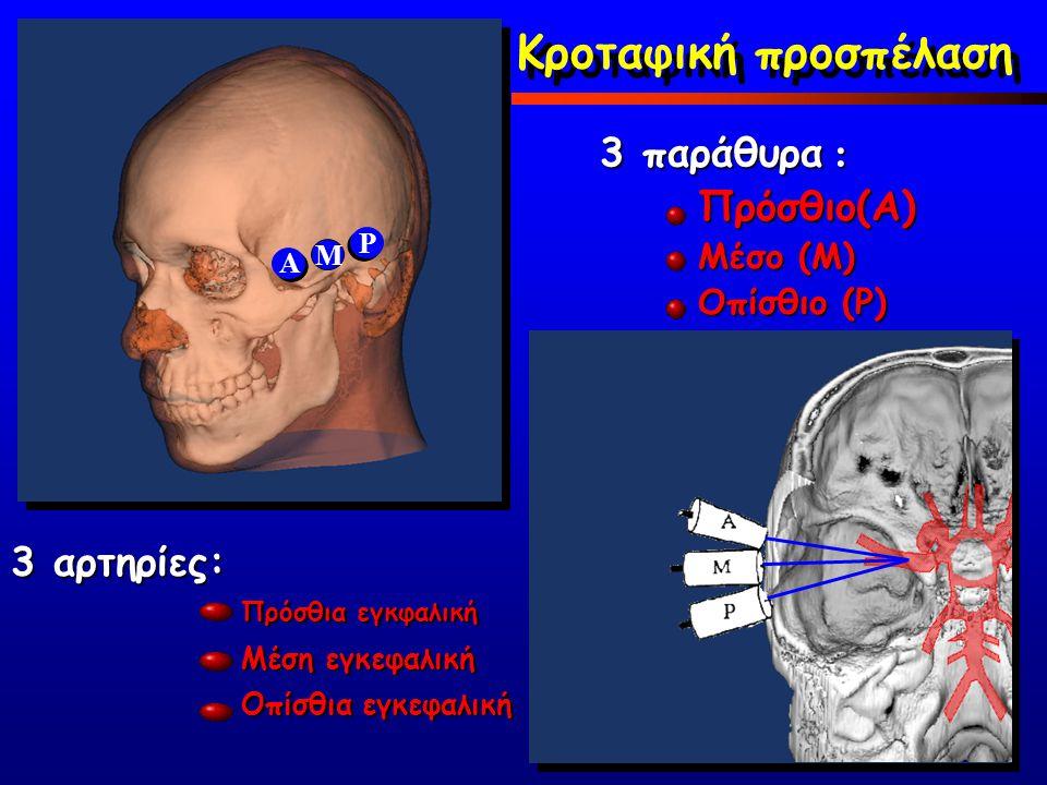 Πρόσθιο(Α) Μέσο (Μ) Οπίσθιο (P) A M P 3 παράθυρα : Πρόσθια εγκφαλική Μέση εγκεφαλική Οπίσθια εγκεφαλική 3 αρτηρίες: Κροταφική προσπέλαση