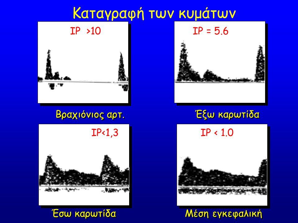IP >10 IP = 5.6 IP<1,3 IP < 1.0 Βραχιόνιος αρτ. Έξω καρωτίδα Έσω καρωτίδα Μέση εγκεφαλική Καταγραφή των κυμάτων