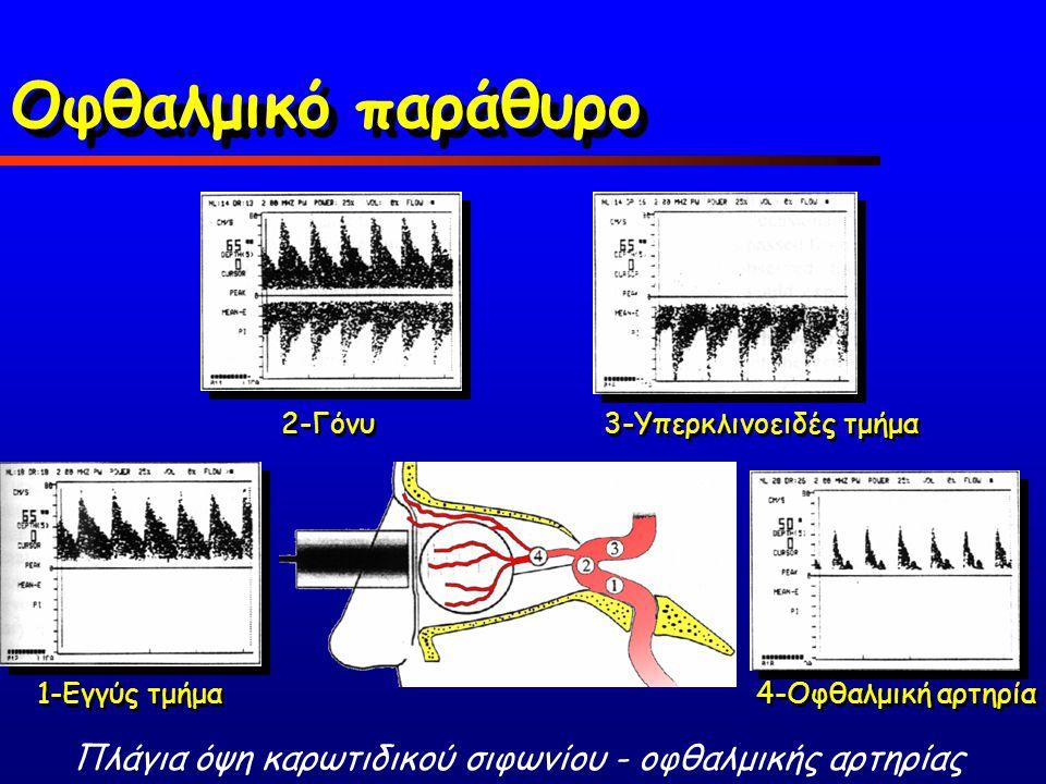 4-Οφθαλμική αρτηρία 1-Εγγύς τμήμα Πλάγια όψη καρωτιδικού σιφωνίου - οφθαλμικής αρτηρίας 2-Γόνυ 3-Υπερκλινοειδές τμήμα Οφθαλμικό παράθυρο