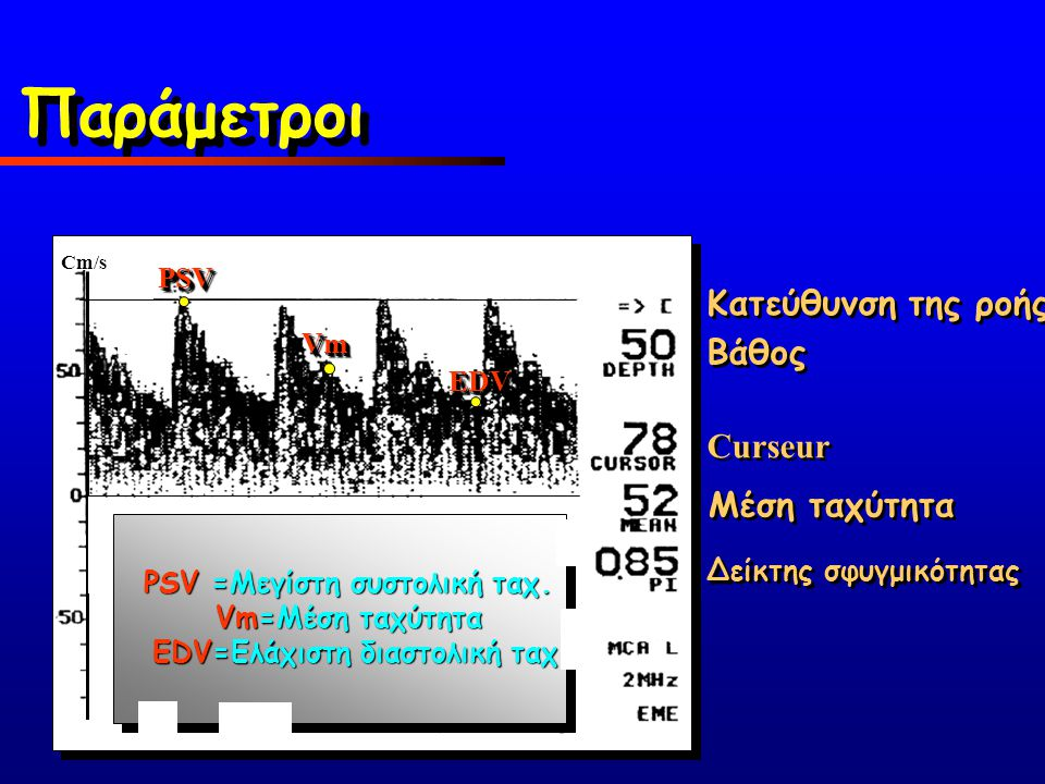 PSVPSV VmVm EDVEDV Κατεύθυνση της ροής Βάθος Curseur Μέση ταχύτητα Δείκτης σφυγμικότητας PSV =Μεγίστη συστολική ταχ. Vm=Μέση ταχύτητα EDV=Ελάχιστη δια