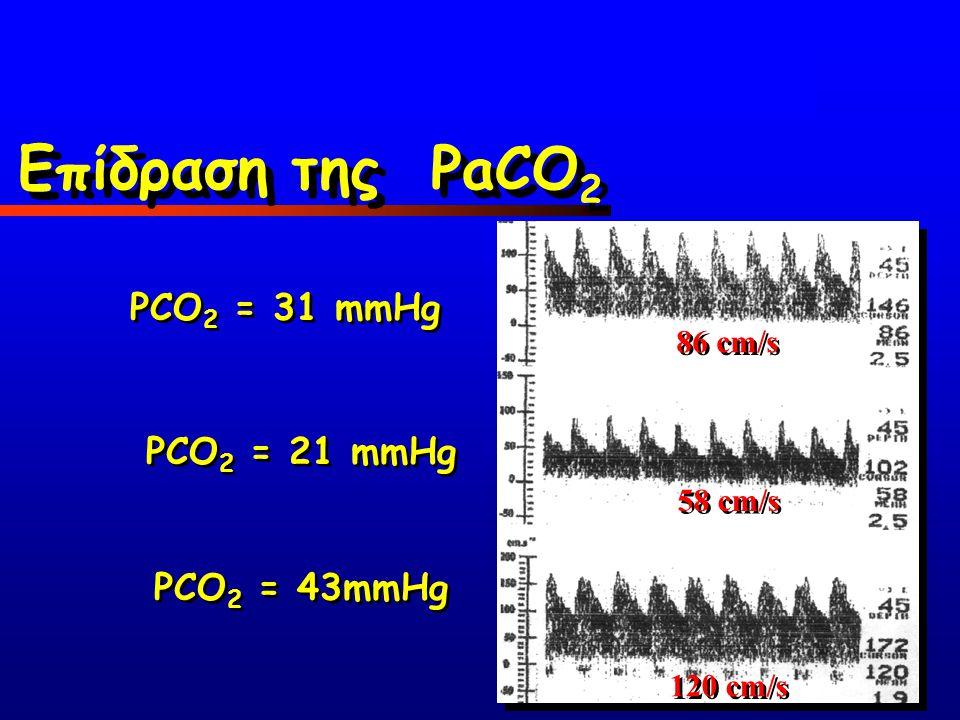 86 cm/s 58 cm/s 120 cm/s PCO 2 = 31 mmHg PCO 2 = 21 mmHg PCO 2 = 43mmHg Επίδραση της PaCO 2
