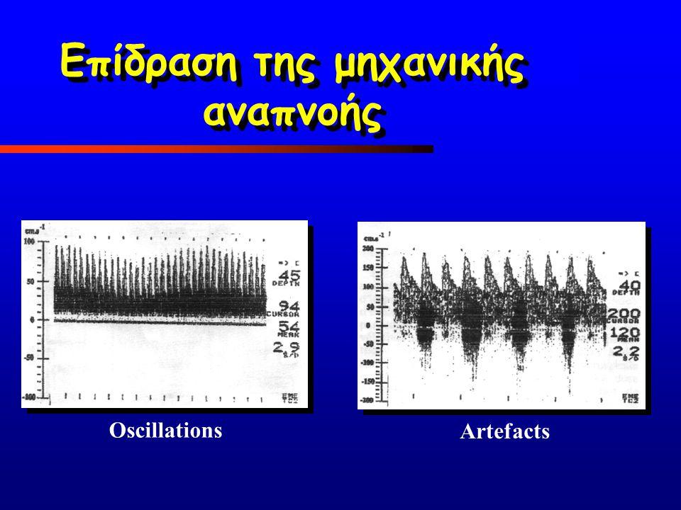 Oscillations Artefacts Επίδραση της μηχανικής αναπνοής