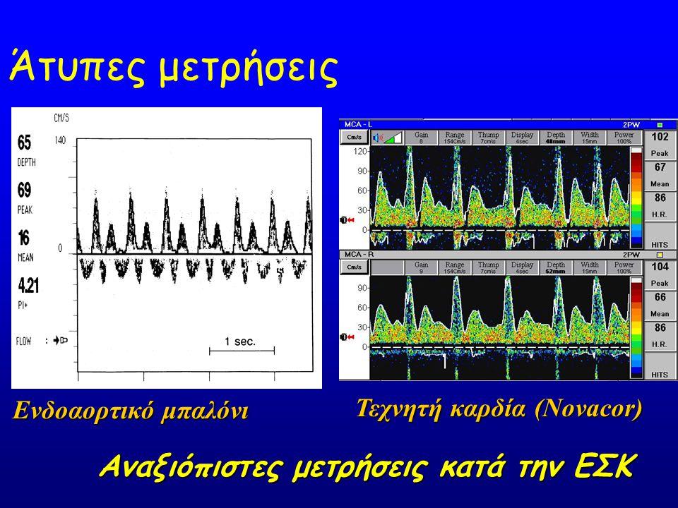 Άτυπες μετρήσεις Ενδοαορτικό μπαλόνι Τεχνητή καρδία (Novacor) Αναξιόπιστες μετρήσεις κατά την ΕΣΚ