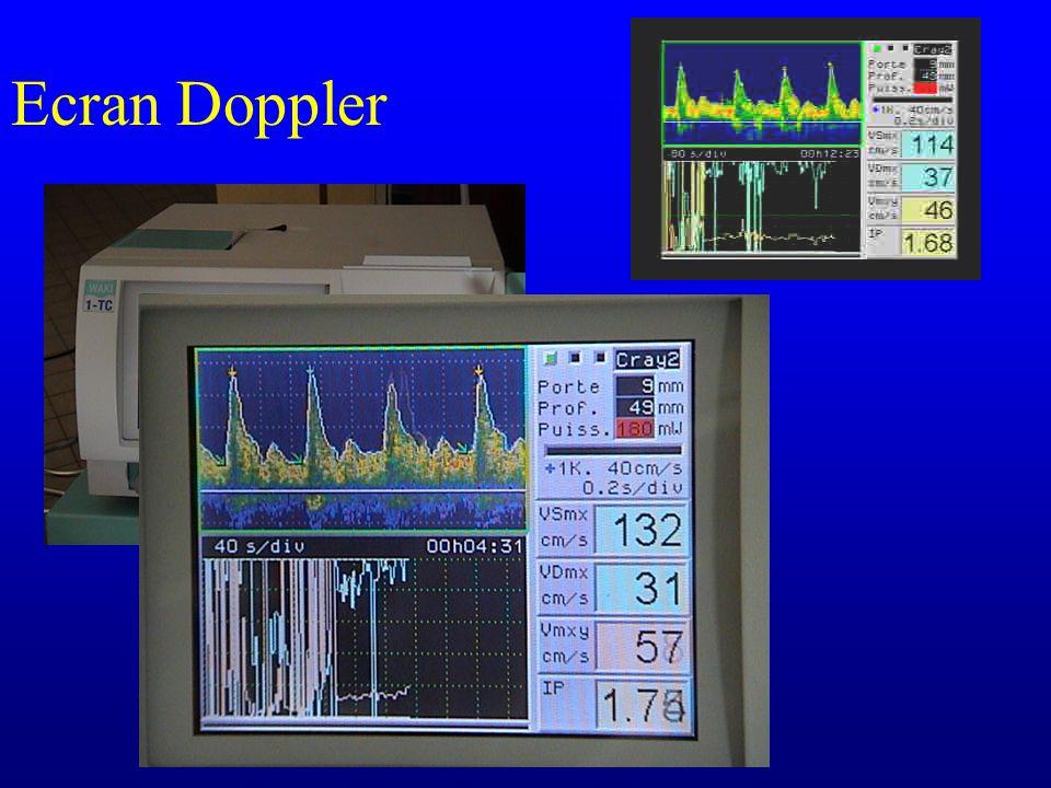 Ecran Doppler