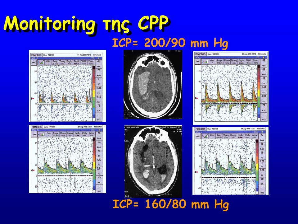 Monitoring της CPP ICP= 200/90 mm Hg ICP= 160/80 mm Hg