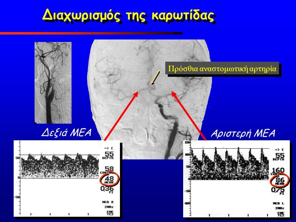 Δεξιά ΜΕΑ Αριστερή ΜΕΑ Πρόσθια αναστομωτική αρτηρία Διαχωρισμός της καρωτίδας