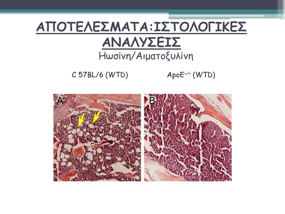 ΑΠΟΤΕΛΕΣΜΑΤΑ:ΙΣΤΟΛΟΓΙΚΕΣ ΑΝΑΛΥΣΕΙΣ Ηωσίνη/Αιματοξυλίνη C 57BL/6 (WTD)ApoE -/- (WTD)