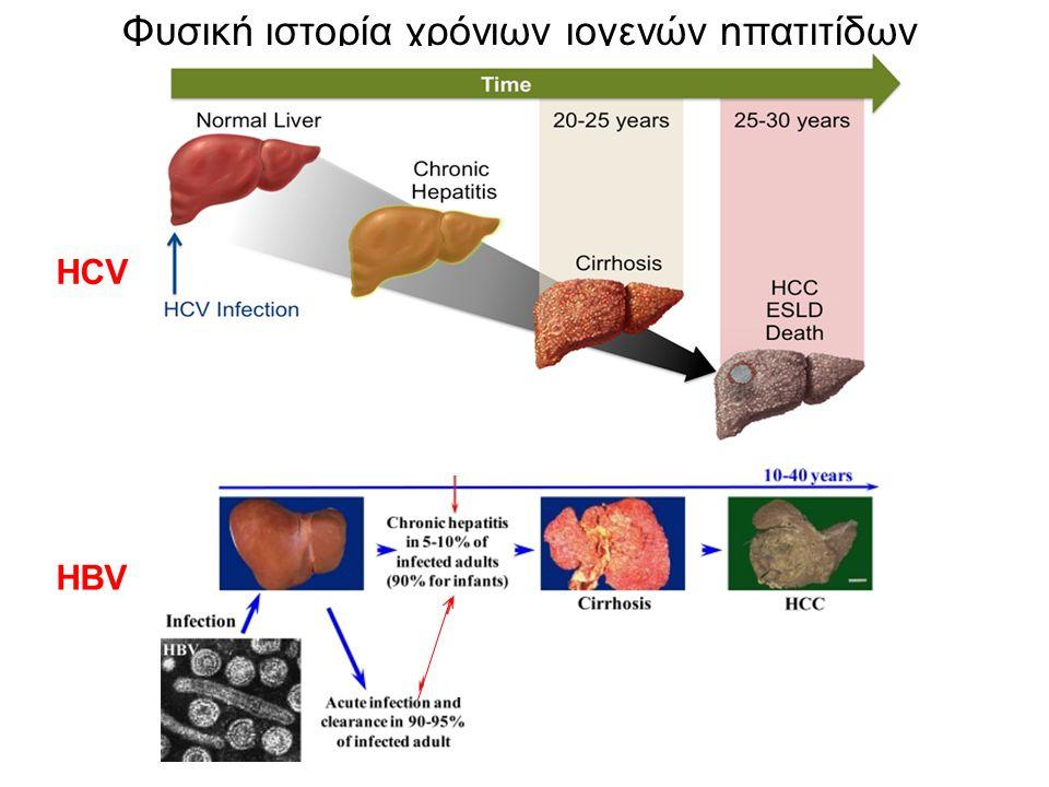 Φυσική ιστορία χρόνιων ιογενών ηπατιτίδων HCV HBV