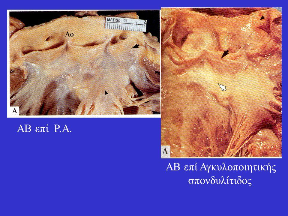 ΑΒ επί Ρ.Α. ΑΒ επί Αγκυλοποιητικής σπονδυλίτιδος