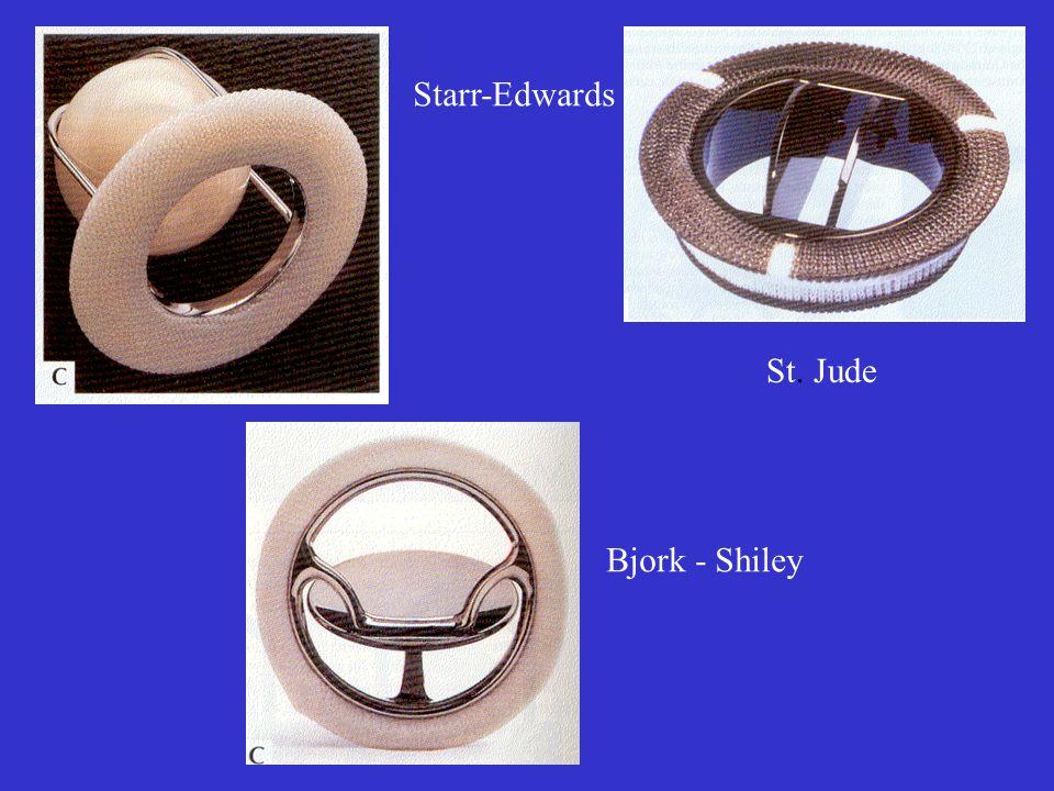 Starr-Edwards Bjork - Shiley St. Jude
