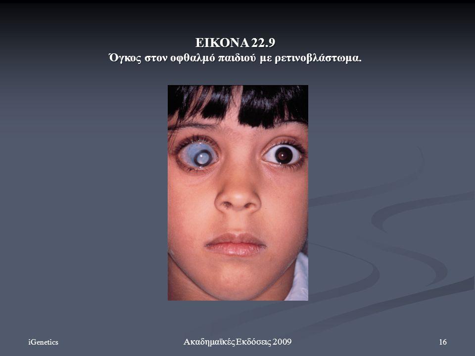 iGenetics 16 Ακαδημαϊκές Εκδόσεις 2009 ΕΙΚΟΝΑ 22.9 Όγκος στον οφθαλμό παιδιού με ρετινοβλάστωμα Όγκος στον οφθαλμό παιδιού με ρετινοβλάστωμα.