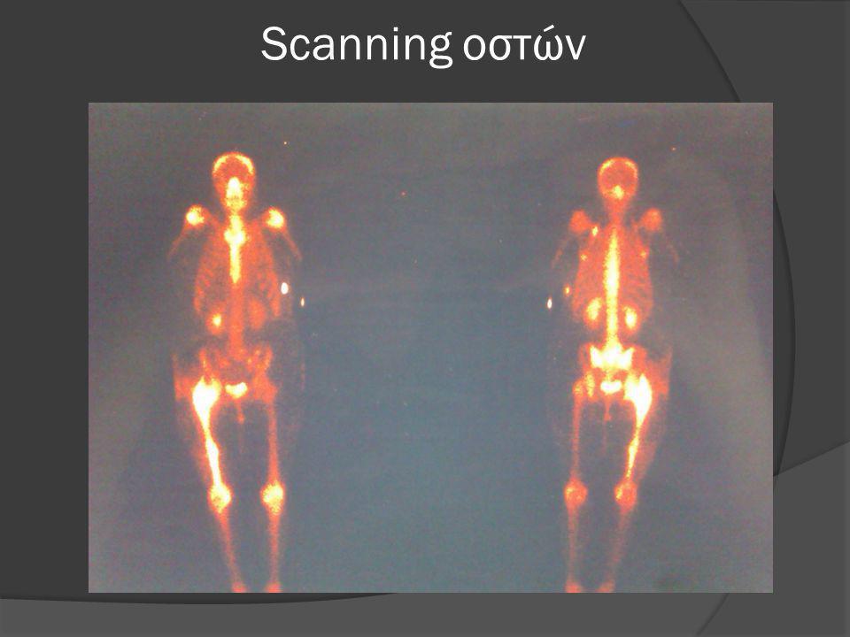 Scanning οστών