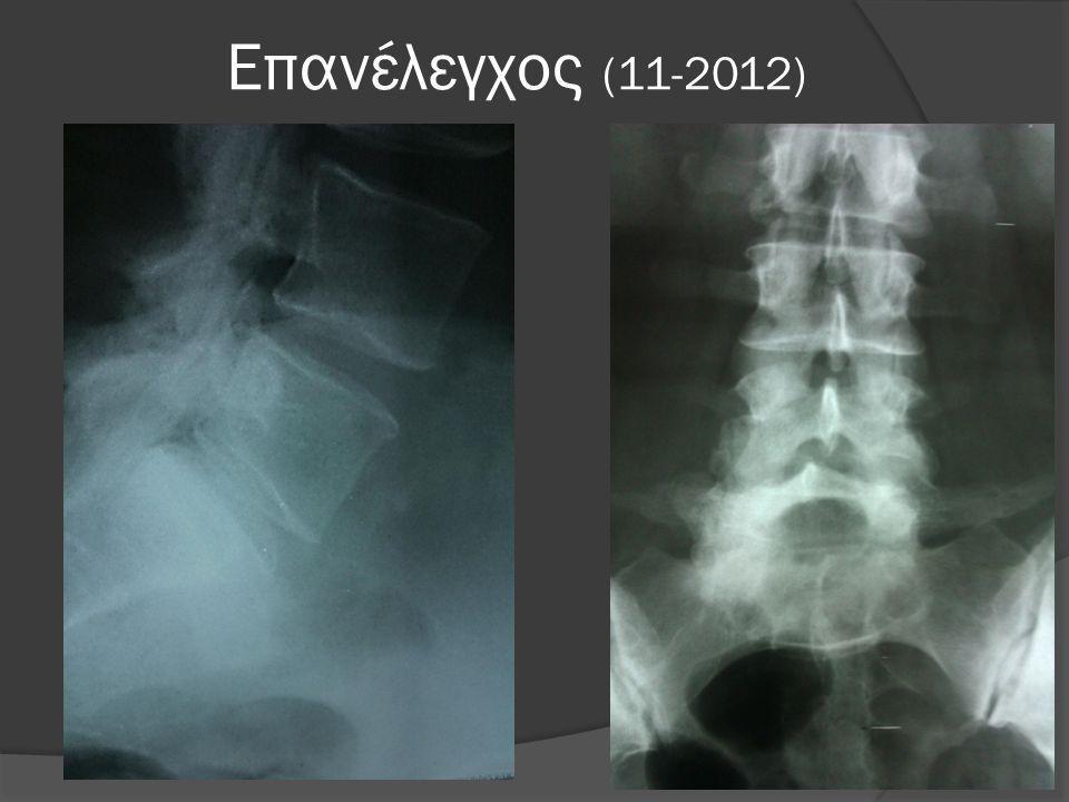 Βάδιση με βακτηρίες αγκώνος  Εκτελεί τις καθημερινές της δραστηριότητες  Άλγος στην περιοχή του μείζονα τροχαντήρα και στο περιφερικό τριτημόριο του μηριαίου  12-2012 επανέλεγχος στο Θεαγένειο
