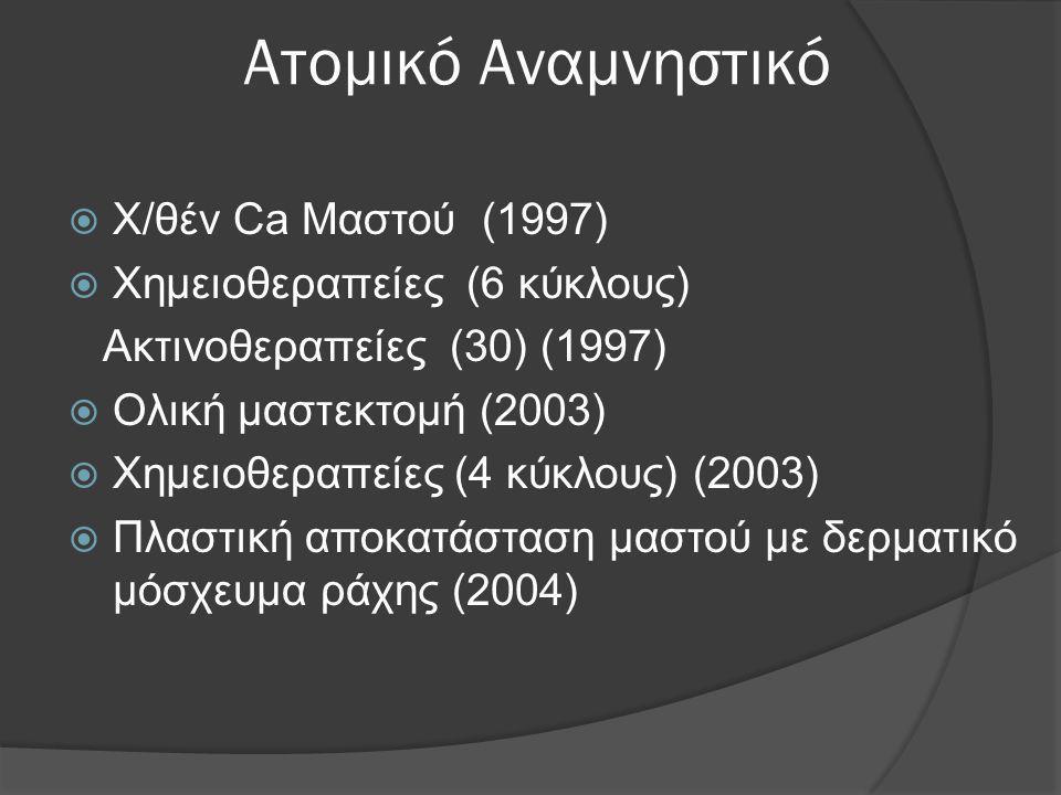 Ατομικό Αναμνηστικό  Χ/θέν Ca Μαστού (1997)  Χημειοθεραπείες (6 κύκλους) Ακτινοθεραπείες (30) (1997)  Ολική μαστεκτομή (2003)  Χημειοθεραπείες (4