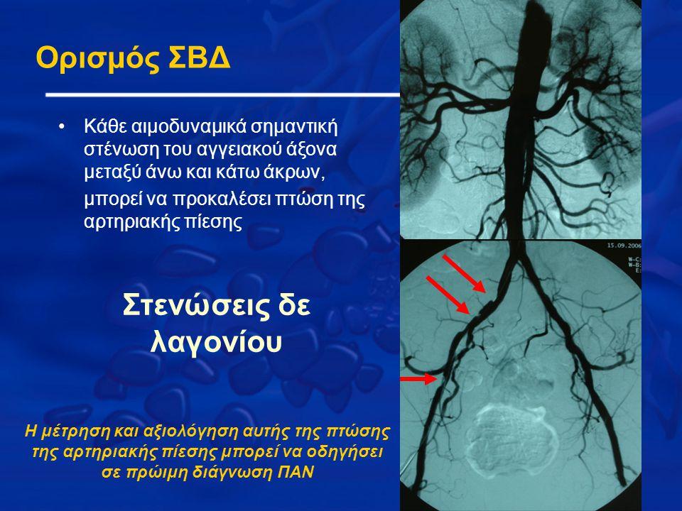 Στενώσεις δε λαγονίου Ορισμός ΣΒΔ Κάθε αιμοδυναμικά σημαντική στένωση του αγγειακού άξονα μεταξύ άνω και κάτω άκρων, μπορεί να προκαλέσει πτώση της αρτηριακής πίεσης Η μέτρηση και αξιολόγηση αυτής της πτώσης της αρτηριακής πίεσης μπορεί να οδηγήσει σε πρώιμη διάγνωση ΠΑΝ