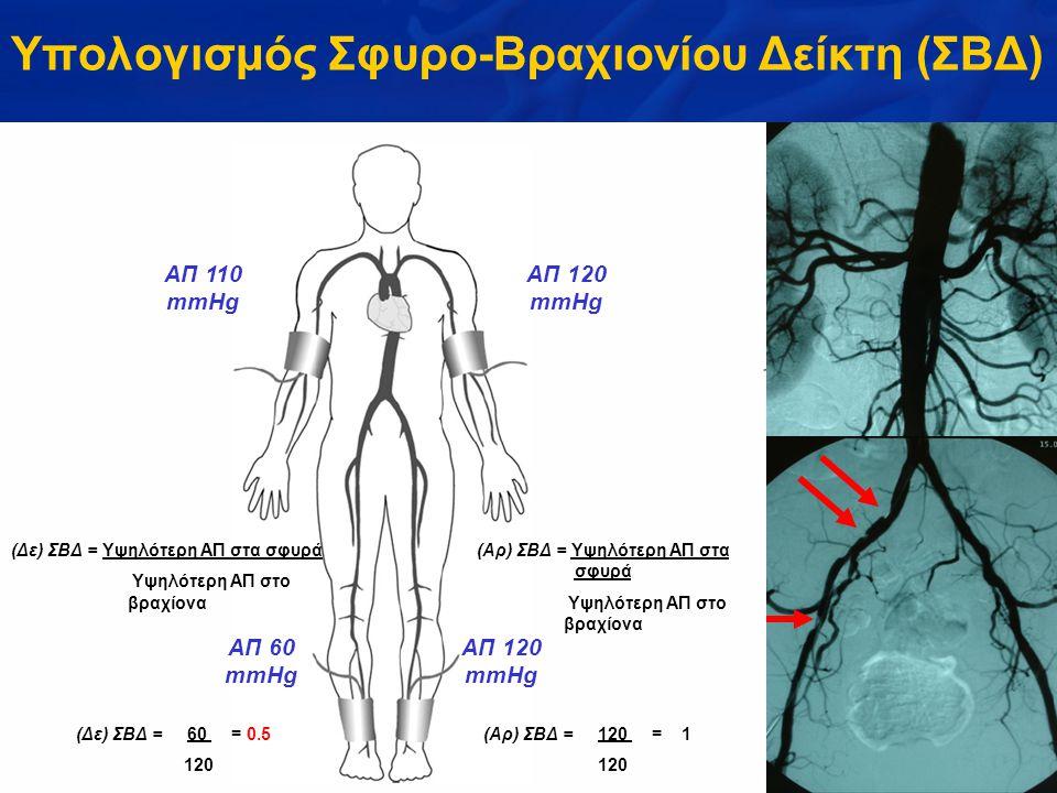 (Δε) ΣΒΔ = Υψηλότερη ΑΠ στα σφυρά Υψηλότερη ΑΠ στο βραχίονα (Αρ) ΣΒΔ = Υψηλότερη ΑΠ στα σφυρά Υψηλότερη ΑΠ στο βραχίονα ΑΠ 110 mmHg ΑΠ 120 mmHg ΑΠ 60 mmHg ΑΠ 120 mmHg (Δε) ΣΒΔ = 60 = 0.5 120 (Αρ) ΣΒΔ = 120 = 1 120 Υπολογισμός Σφυρο-Βραχιονίου Δείκτη (ΣΒΔ)