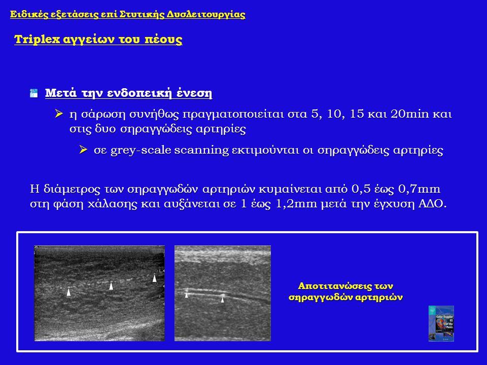 Μετά την ενδοπεική ένεση  η σάρωση συνήθως πραγματοποιείται στα 5, 10, 15 και 20min και στις δυο σηραγγώδεις αρτηρίες  σε grey-scale scanning εκτιμο