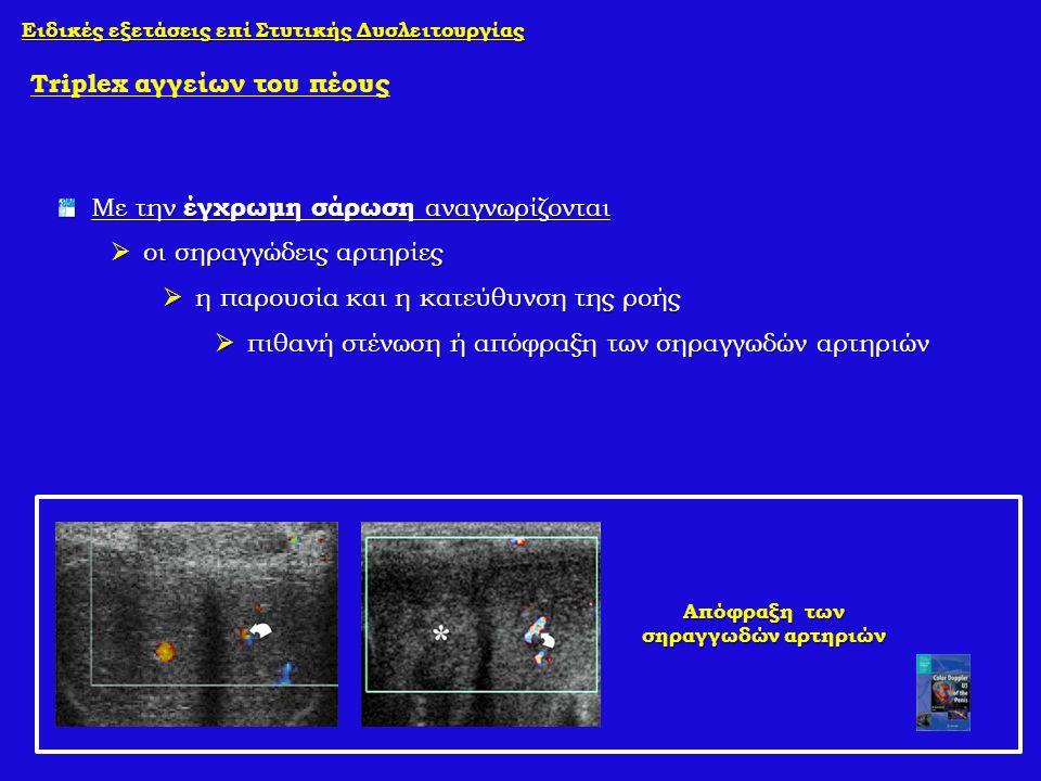 Ειδικές εξετάσεις επί Στυτικής Δυσλειτουργίας Triplex αγγείων του πέους Με την έγχρωμη σάρωση αναγνωρίζονται  οι σηραγγώδεις αρτηρίες  η παρουσία κα