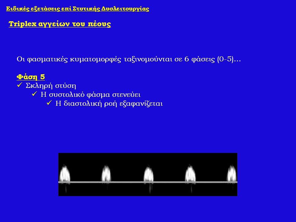 Ειδικές εξετάσεις επί Στυτικής Δυσλειτουργίας Triplex αγγείων του πέους Οι φασματικές κυματομορφές ταξινομούνται σε 6 φάσεις (0-5)… Φάση 5 Σκληρή στύσ