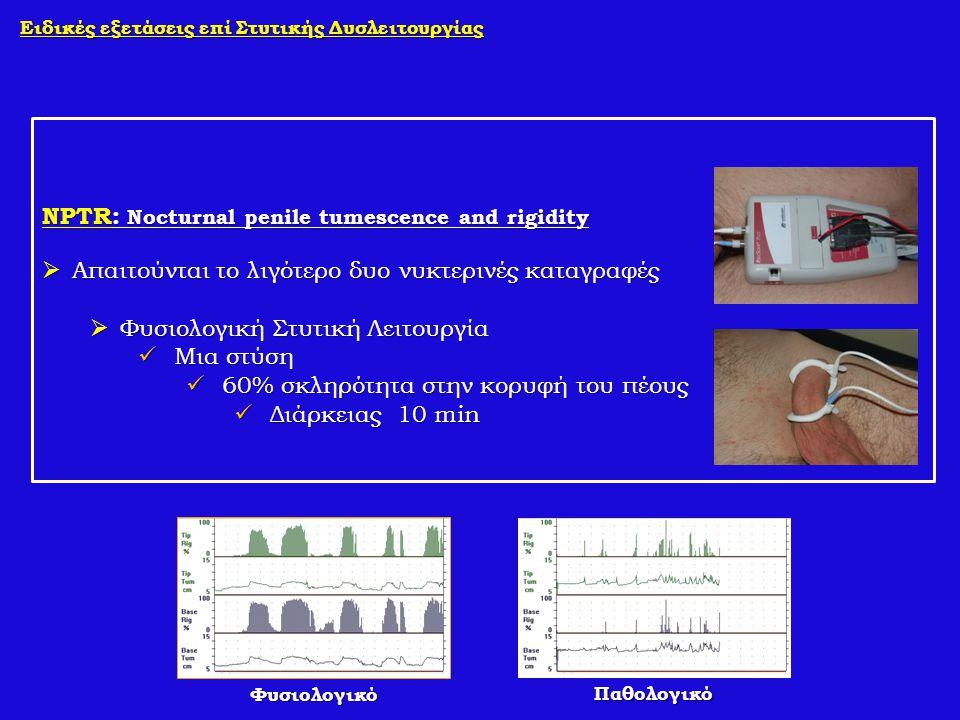 Ειδικές εξετάσεις επί Στυτικής Δυσλειτουργίας NPTR: Nocturnal penile tumescence and rigidity  Απαιτούνται το λιγότερο δυο νυκτερινές καταγραφές  Φυσ