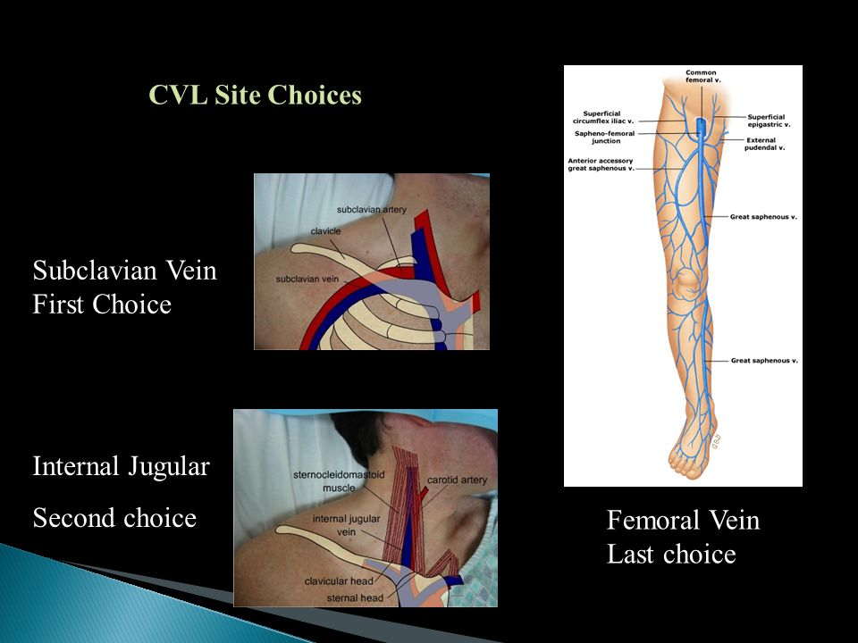 CVL Site Choices Subclavian Vein First Choice Internal Jugular Second choice Femoral Vein Last choice