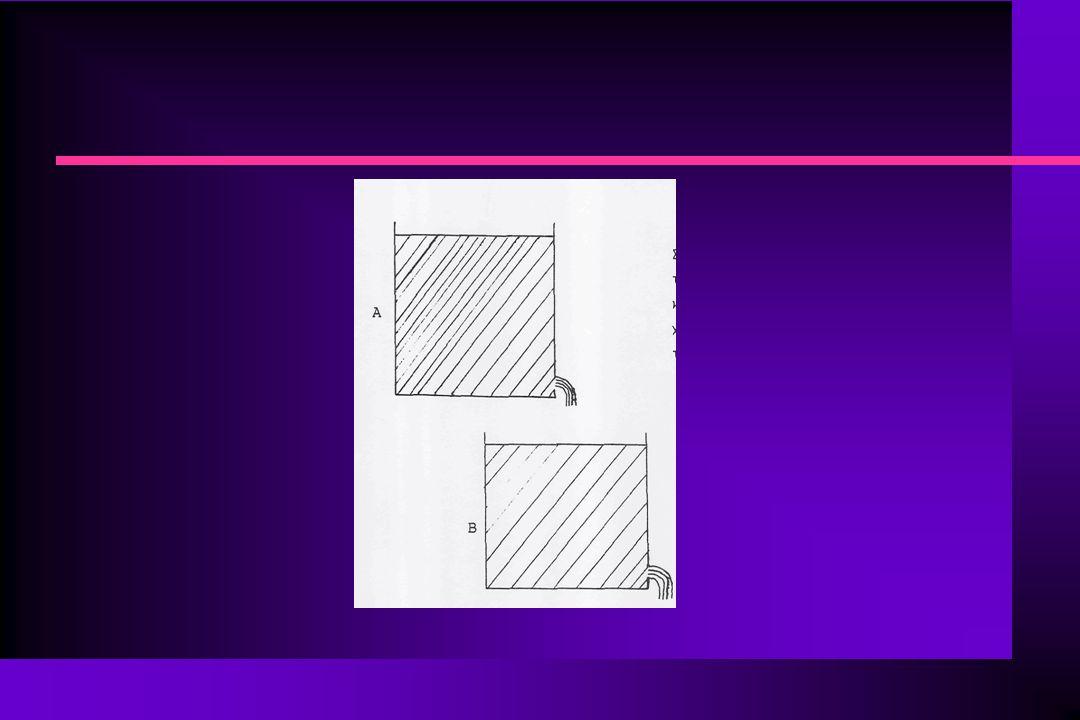 ΦΑΡΜΑΚΟΚΙΝΗΤΙΚΗ ΕΞΩΑΓΓΕΙΑΚΗΣ ΧΟΡΗΓΗΣΗΣ ΦΑΡΜΑΚΩΝ n Στην αρχή η στάθμη στο δοχείο Α βρίσκεται ψηλά και ο ρυθμός εισόδου στο δοχείο Β είναι μεγάλος, ενώ ο ρυθμός απομάκρυνσης από το δοχείο Β είναι μηδέν (δεν υπάρχει διάλυμα).