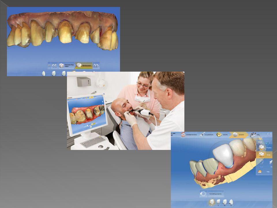  Μεμονωμένες εικόνες δημιουργία 3D μοντέλου  Εντοπισμός κατάλληλης στιγμής για έκθεση από την κάμερα  Ψεκασμός των δοντιών με σκόνη Αποδεκτή εικόνα από κάμερα  Δόντια στην οθόνη σε 3D μορφή  Σχεδιασμός αποκατάστασης μπροστά στον ασθενή