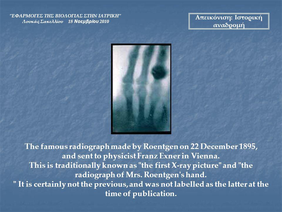 ΕΦΑΡΜΟΓΕΣ ΤΗΣ ΒΙΟΛΟΓΙΑΣ ΣΤΗΝ ΙΑΤΡΙΚΗ Λουκάς Σακελλίου 18 Νοεμβρίου 2010 Mihran Kassabian (1870-1910) set up his radiography department in an old operating amphitheater at the Medico-Chirurgical Hospital of Philadelphia.