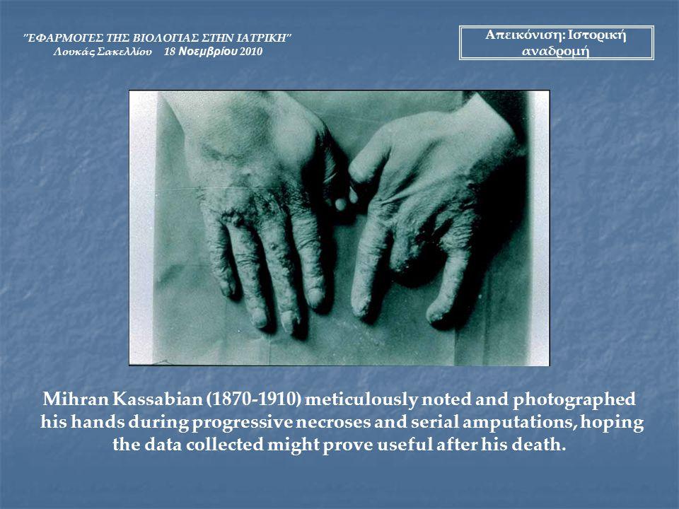 ΕΦΑΡΜΟΓΕΣ ΤΗΣ ΒΙΟΛΟΓΙΑΣ ΣΤΗΝ ΙΑΤΡΙΚΗ Λουκάς Σακελλίου 18 Νοεμβρίου 2010 ΣΤΟΙΧΕΙΑ ΑΚΤΙΝΟΠΡΟΣΤΑΣΙΑΣ Σκοπός της ακτινοπροστασίας είναι ο περιορισμός των στοχαστικών και η αποφυγή των μη-στοχαστικών αποτελεσμάτων της αλληλεπίδρασης της ακτινοβολίας με την έμβια ύλη.
